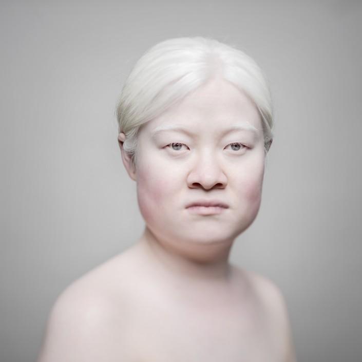 AlbinosAliceLeveque-4-705x705